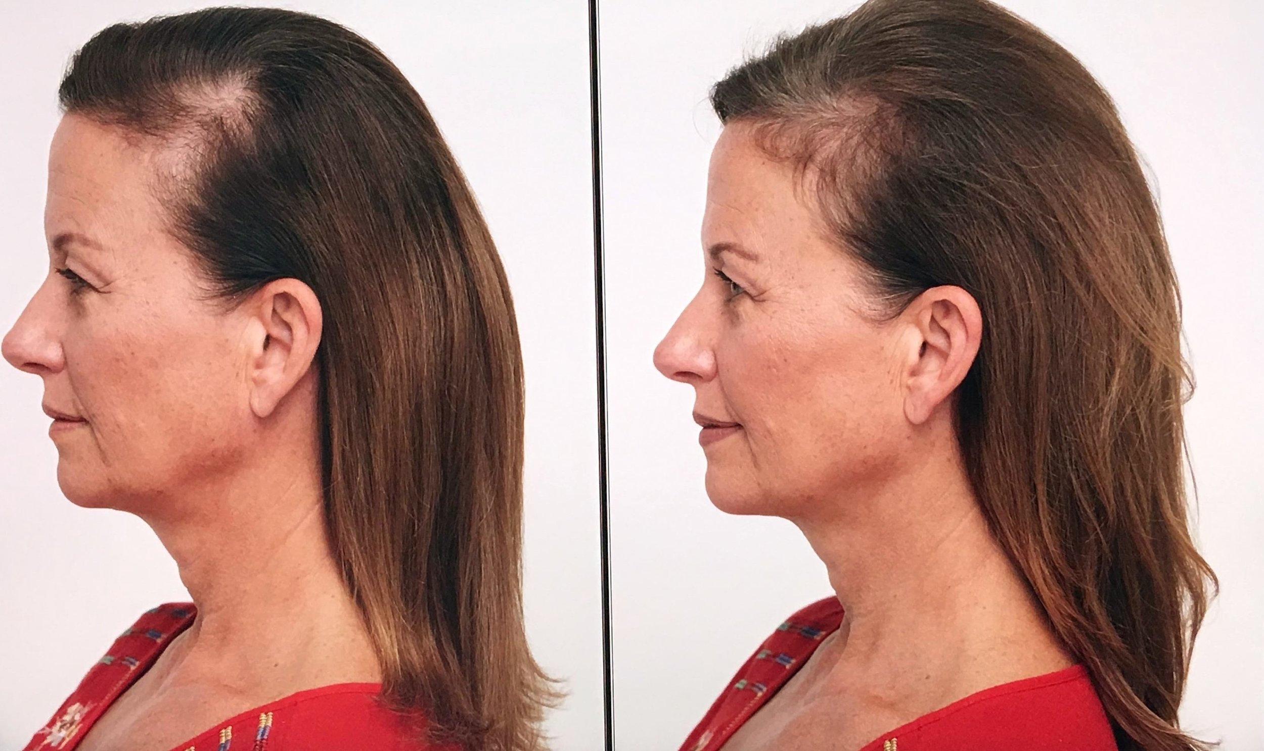 Aly Before After at 30 Days (2) - Edited.jpg