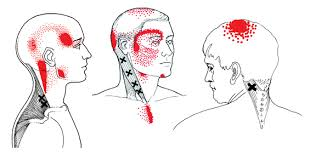 An example of a few Trigger Points and their referral patterns. The x marks where the Trigger Point is located and the red dots mark where the pain is felt.