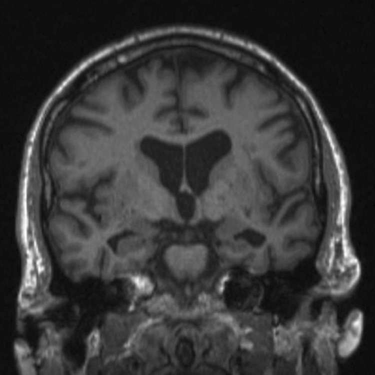 Formulaic Language in Dementias -