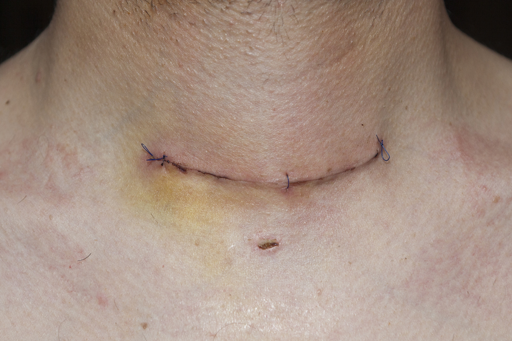 Surgery Thyroid Cancer Canada
