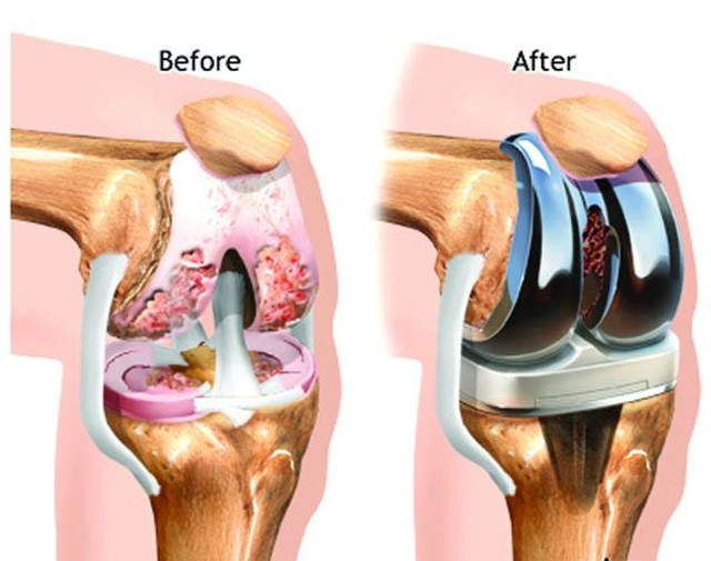 TOTAL KNEE REPLACEMENT: A surgical procedure to resurface a knee damaged by arthritis. Metal and plastic parts are used to cap the ends of the bones that form the knee joint, along with the kneecap. This surgery is often the choice for someone who has severe arthritis.  Various types of arthritis may affect the knee joint, including  Osteoarthritis, Rheumatoid arthritis, or Traumatic arthritis, can create breakdown of the cartilage in the knee. The goal of knee replacement surgery is to resurface the parts of the knee joint that have been damaged and to relieve knee pain that cannot be controlled by other treatments.  Good physical therapy is the key for a long-term successful result after knee replacement surgery. Restoring your range of motion and strength allows you to return to the things you were missing out on because of knee pain. #SportsPlusPT #TryPTFirst #Call6417536636