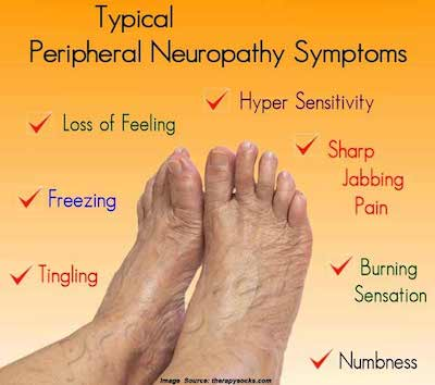 Figure 1 Neuropathy caused by Diabetes