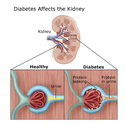 Figure 3 Diabetes Affects the Kidney