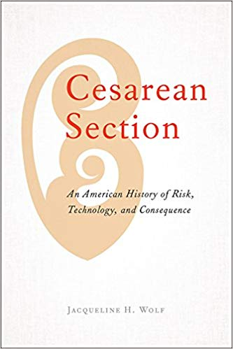 Cesarean section - An American history of risk, technology, and consequence  Kindle  and hardcover by Jacqueline H. Wolf
