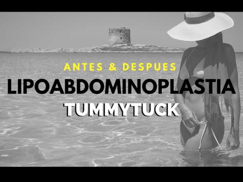 Lipoabdominoplasty / Tummytuck