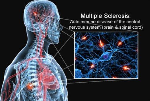 multiple-sclerosis-s1-brain-spinal-cord-nerves.jpg