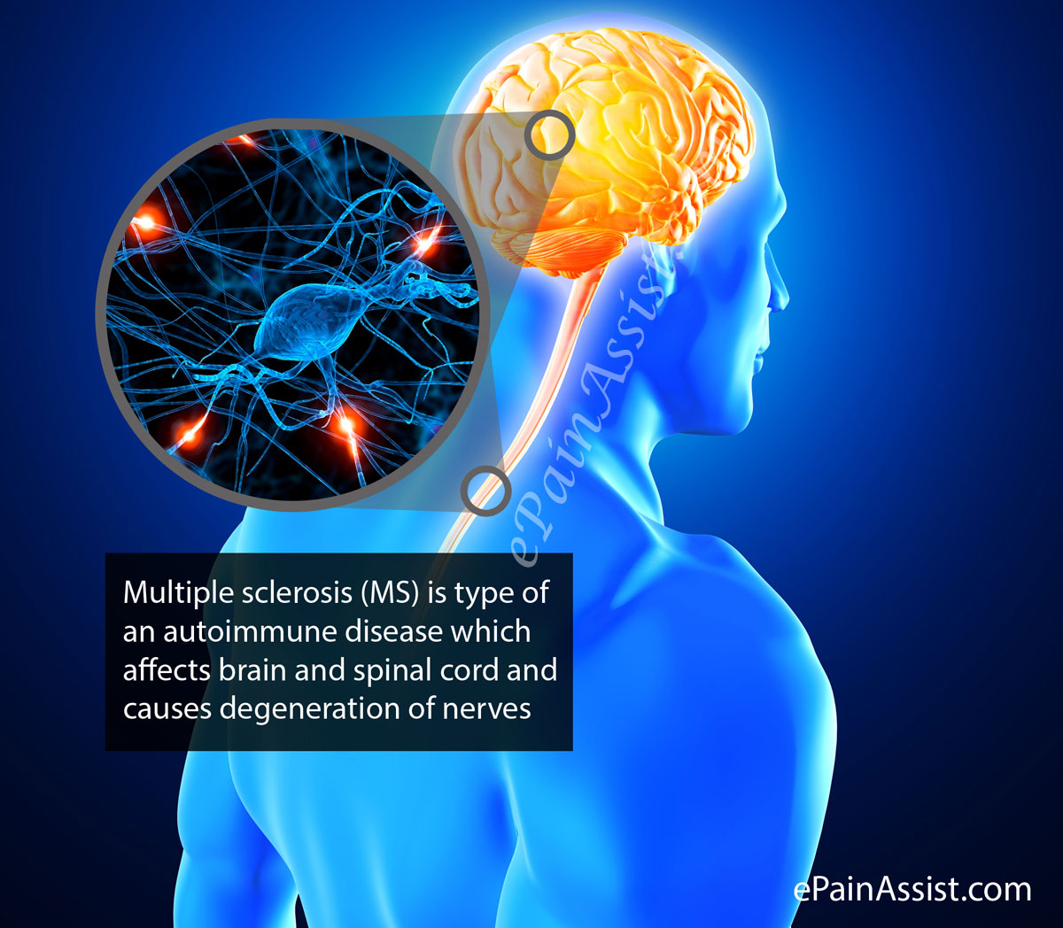 Multiple-Sclerosis.jpg