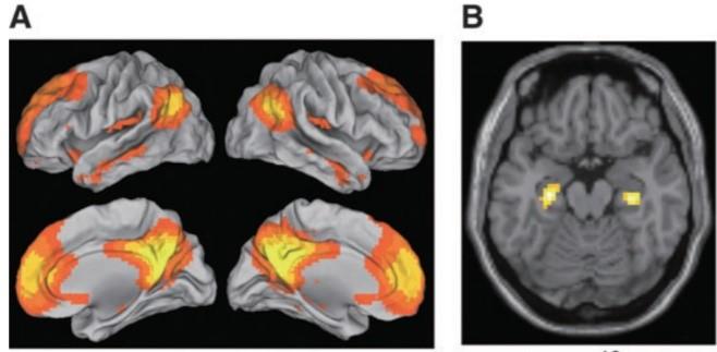 fMRIのデフォルトモードネットワーク相関図
