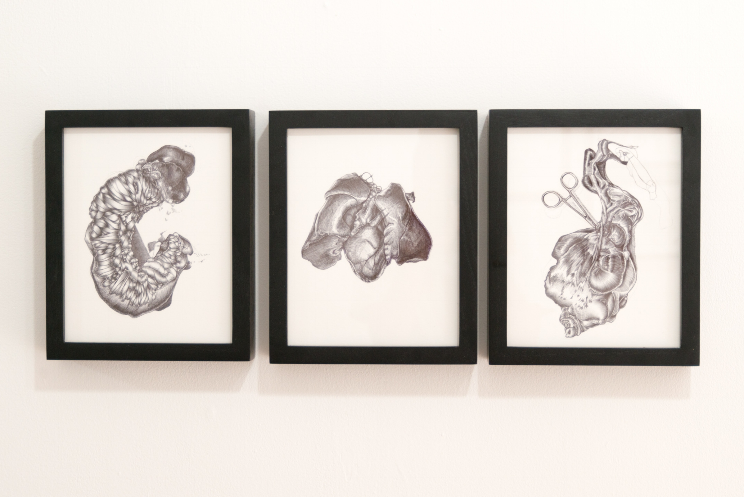 Doreen Garner,  Medical Study 7-9 , ink on paper, 5 x 8 inches each. Image courtesy of Larrie.