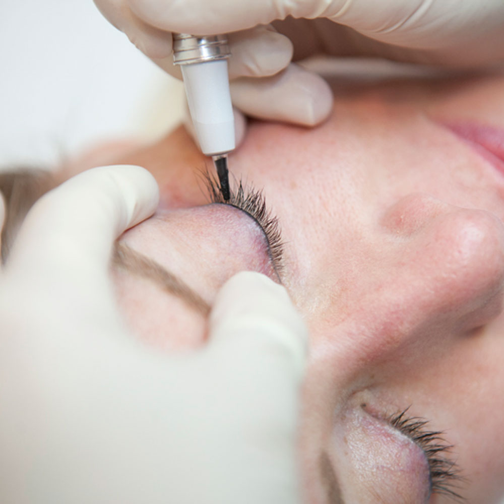 Hands-on Micropigmentation experience at Prettyology