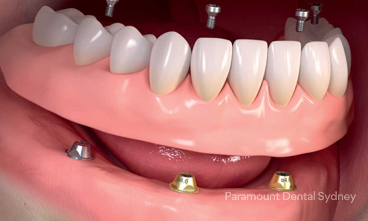 © Paramount Dental Sydney Full Mouth Dental Implants 1.jpg