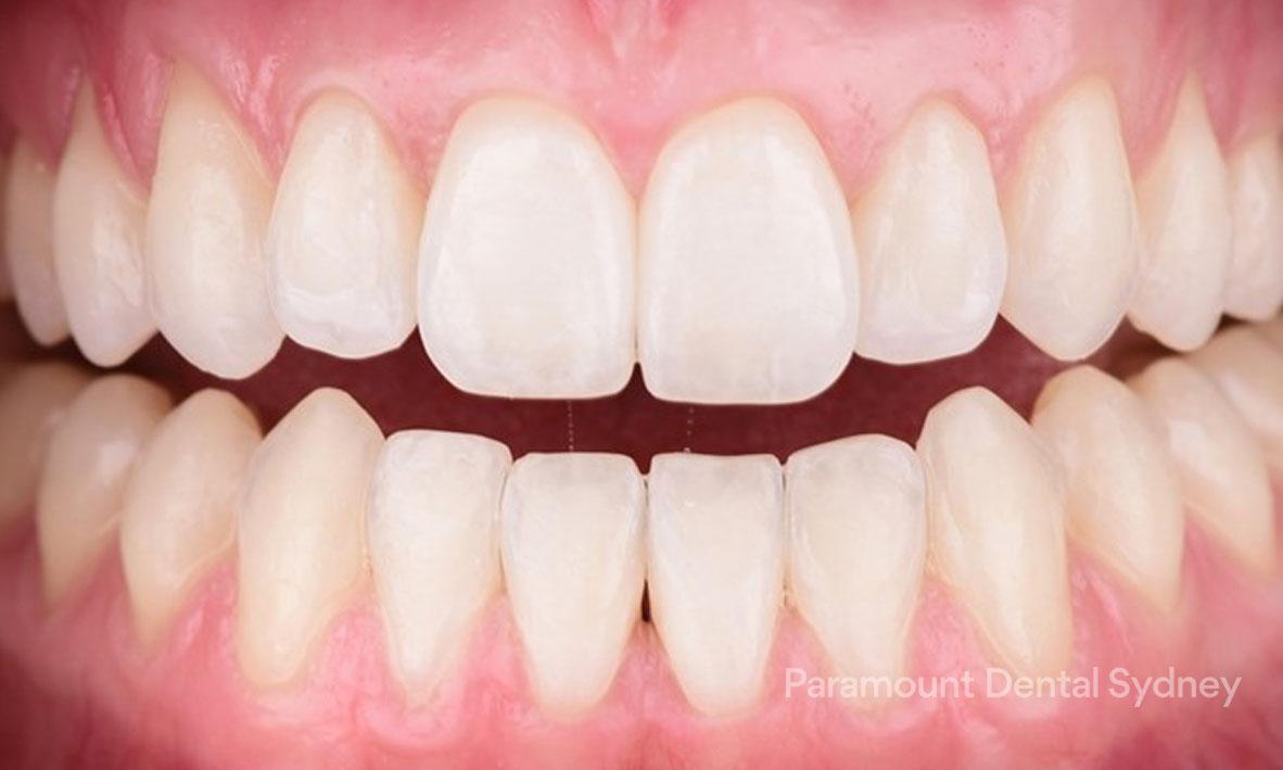 Gum Bleaching - →