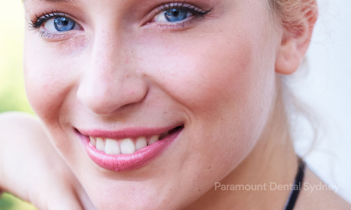© Paramount Dental Sydney Mouth Lines