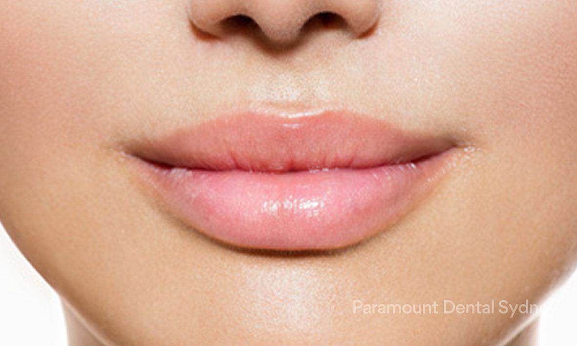 Lip Enhancement - →