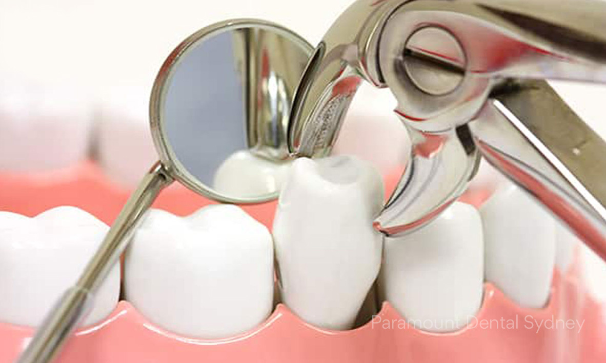 ©-Paramount-Dental-Sydney-02-That-Was-Quick-Tooth-Extaction.jpg