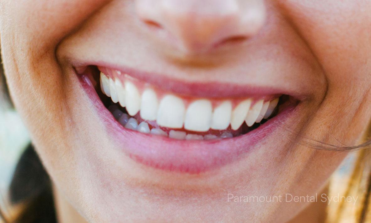 ©-Paramount-Dental-Sydney-02-Teeth-Whitening-Doesn't-Destroy-Enamel.jpg