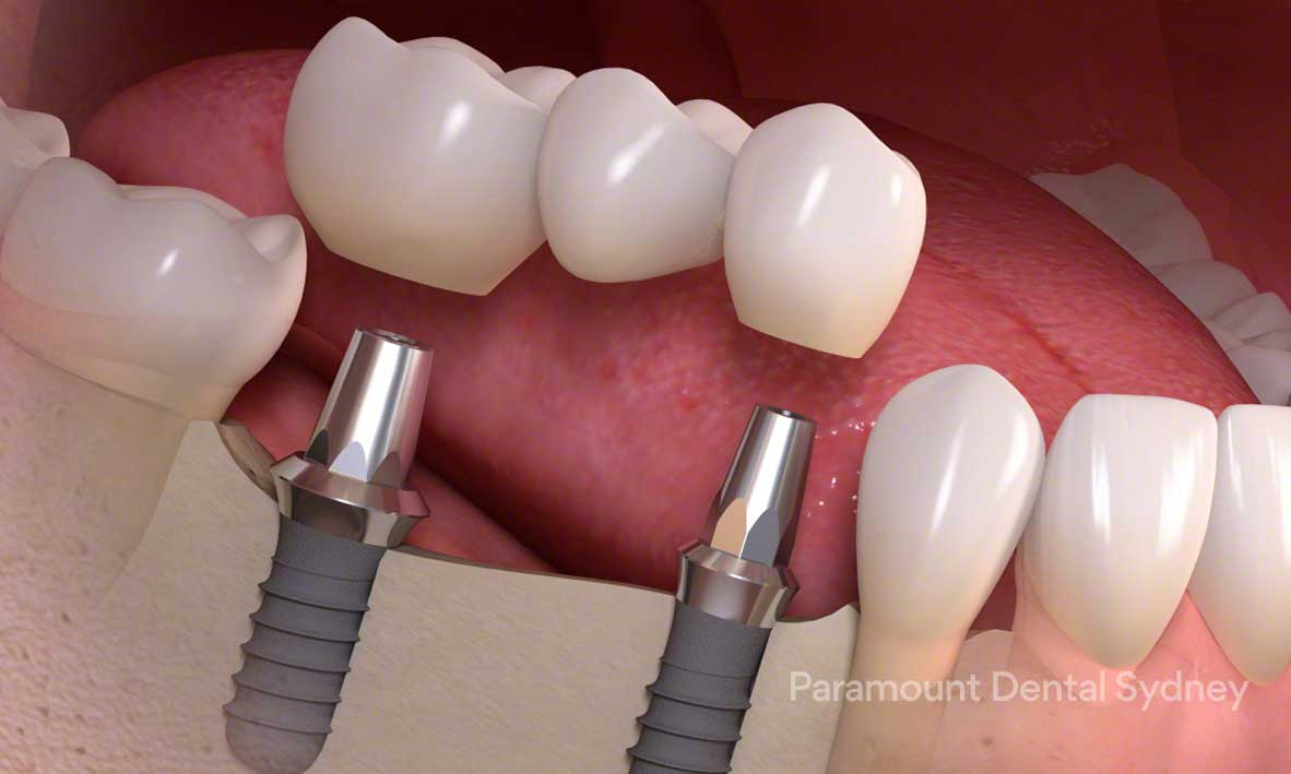 Dental Implants - A permanent implant of a custom designed tooth or teeth→