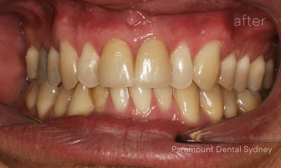 Treatment: Splint with several weeks of observation followed by Porcelain Crowns