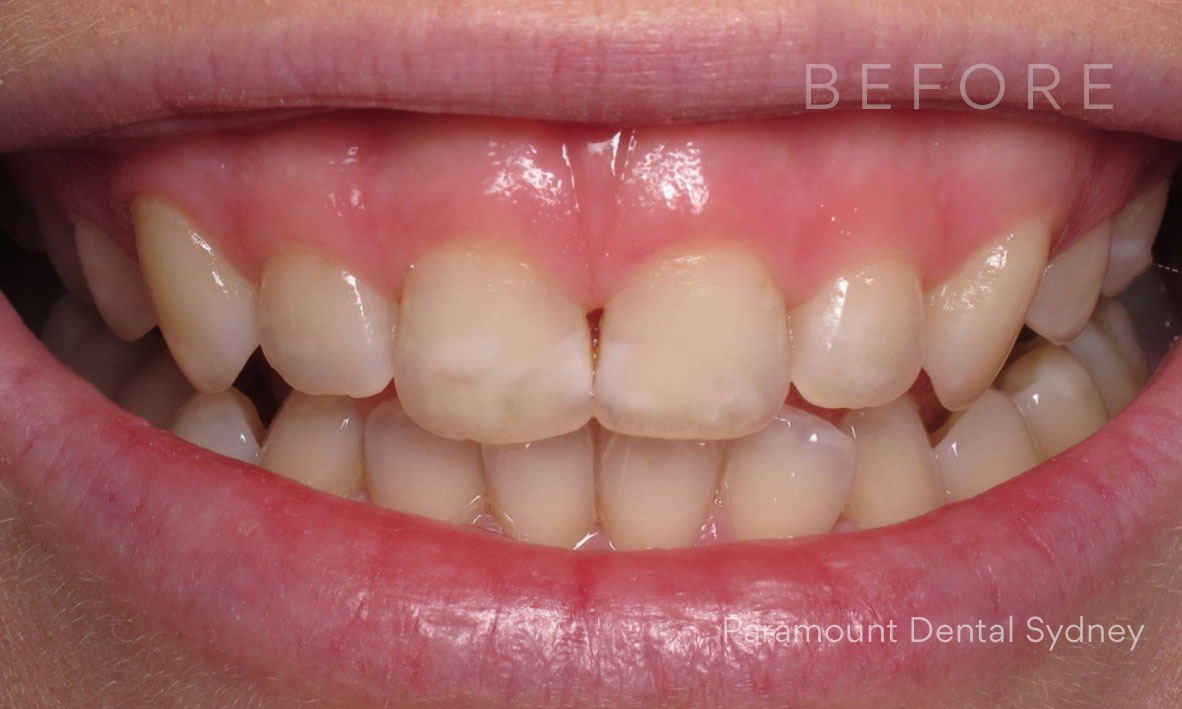 Before: Visible  Discolouration  +  Gummy Smile