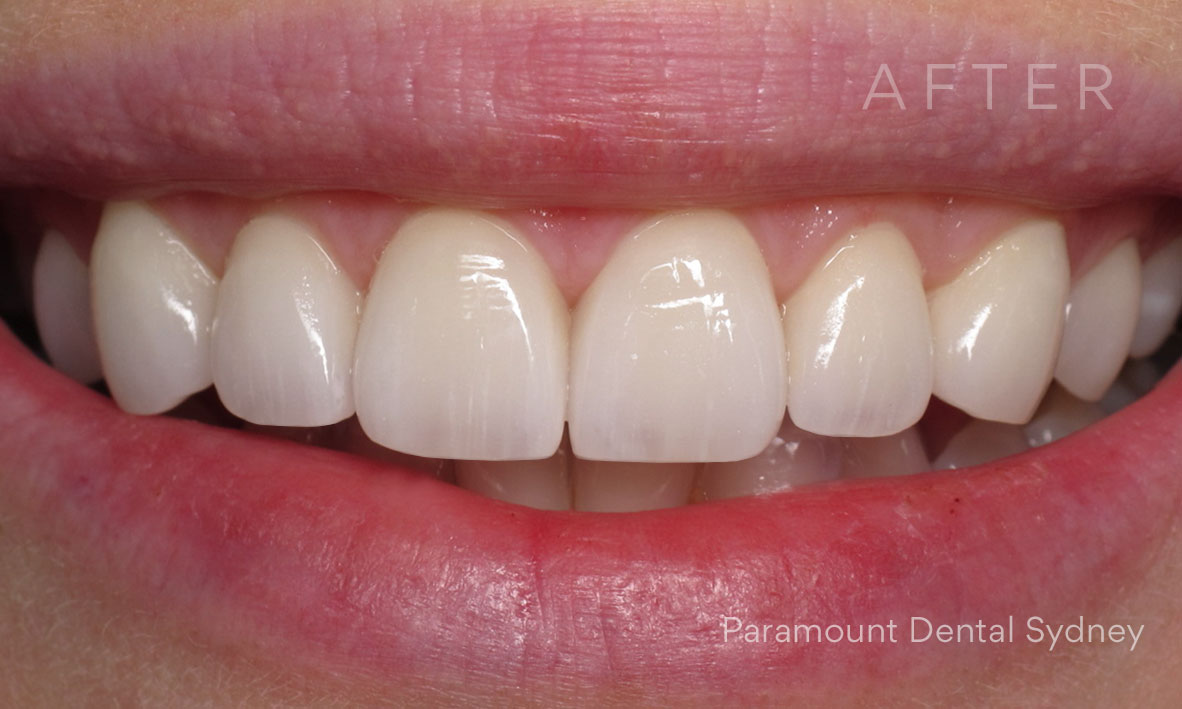 After:  Veneers  +  Fillers (Facial Injectables)