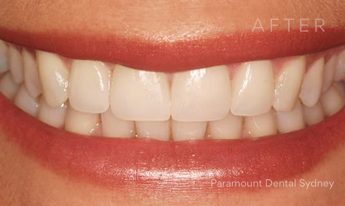 After:  Veneers  +  Teeth Whitening  +  Upper Lip Fillers ( Facial Injectables )
