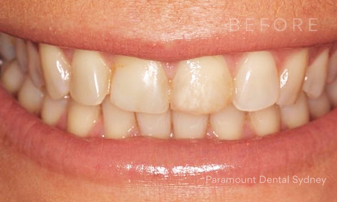 Before:  Visible Discolouration  +  Chipped Teeth