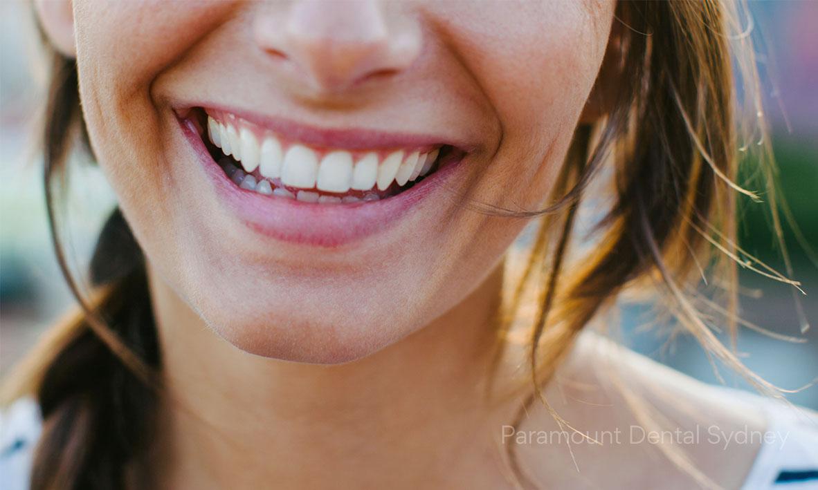 © Paramount Dental Sydney Teeth Whitening Hom vs Office 03.jpg