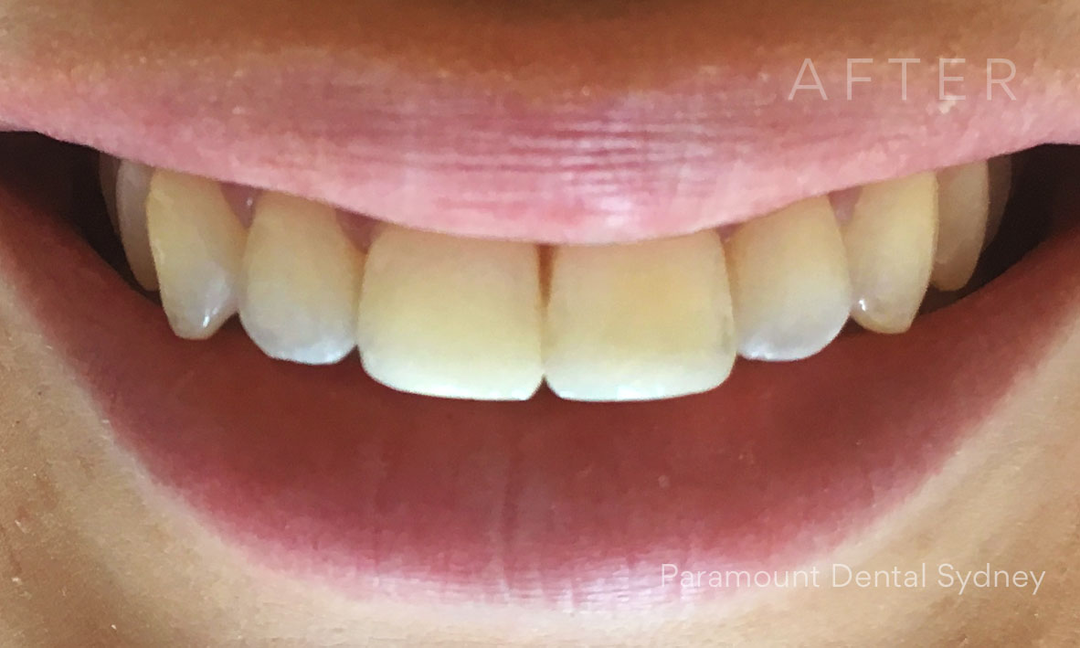 © Paramount Dental Sydney Veneers Before and After 4 After.jpg