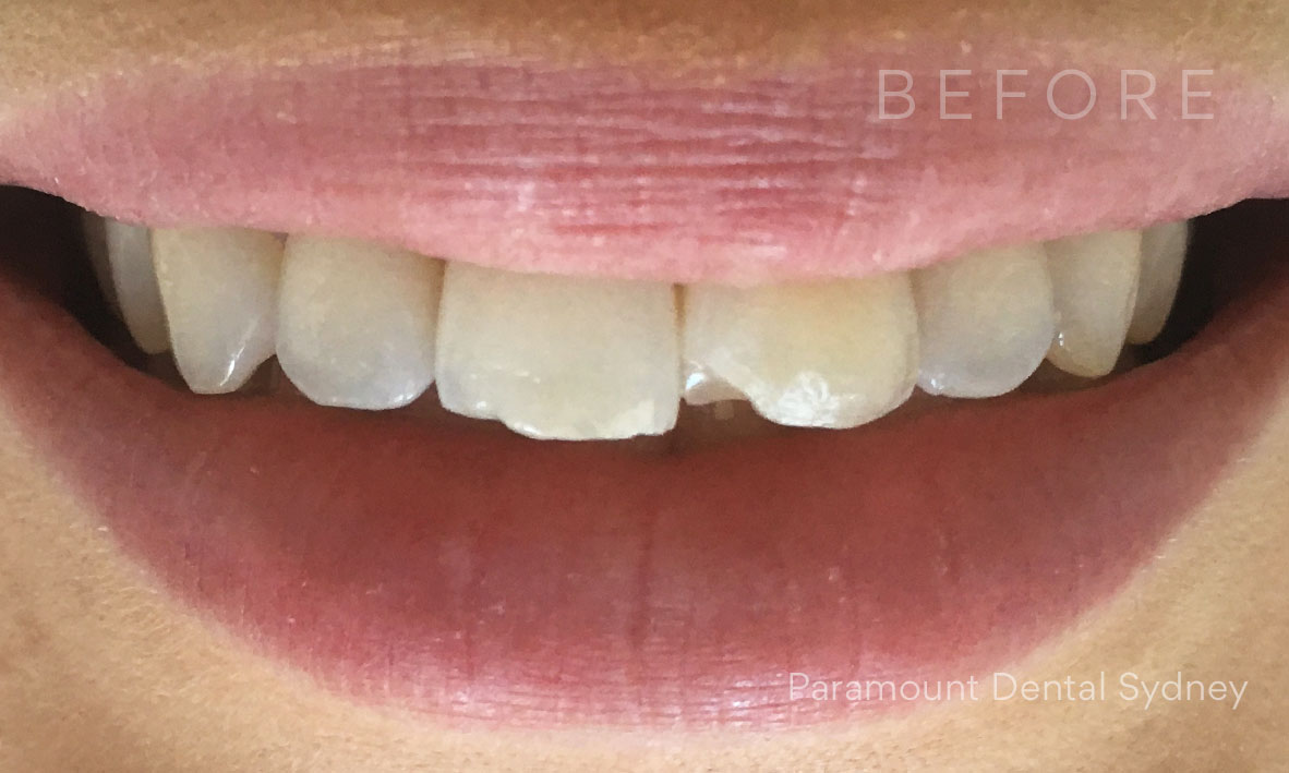 © Paramount Dental Sydney Veneers Before and After 4 Before.jpg