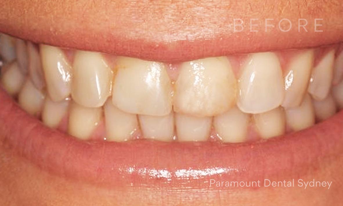 © Paramount Dental Sydney Discoloured Teeth 06b.jpg