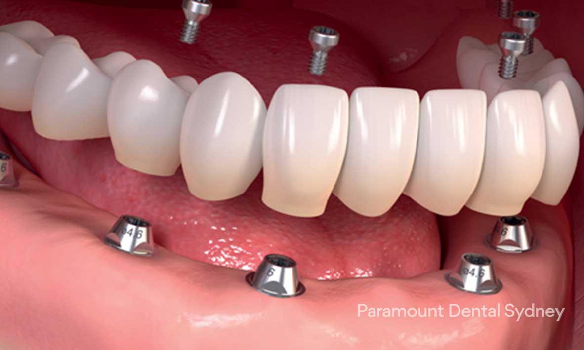 © Paramount Dental Sydney Dental Implants 05.jpg