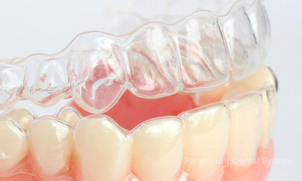Invisalign (Clear Braces) - Clear, comfortable and removable.→