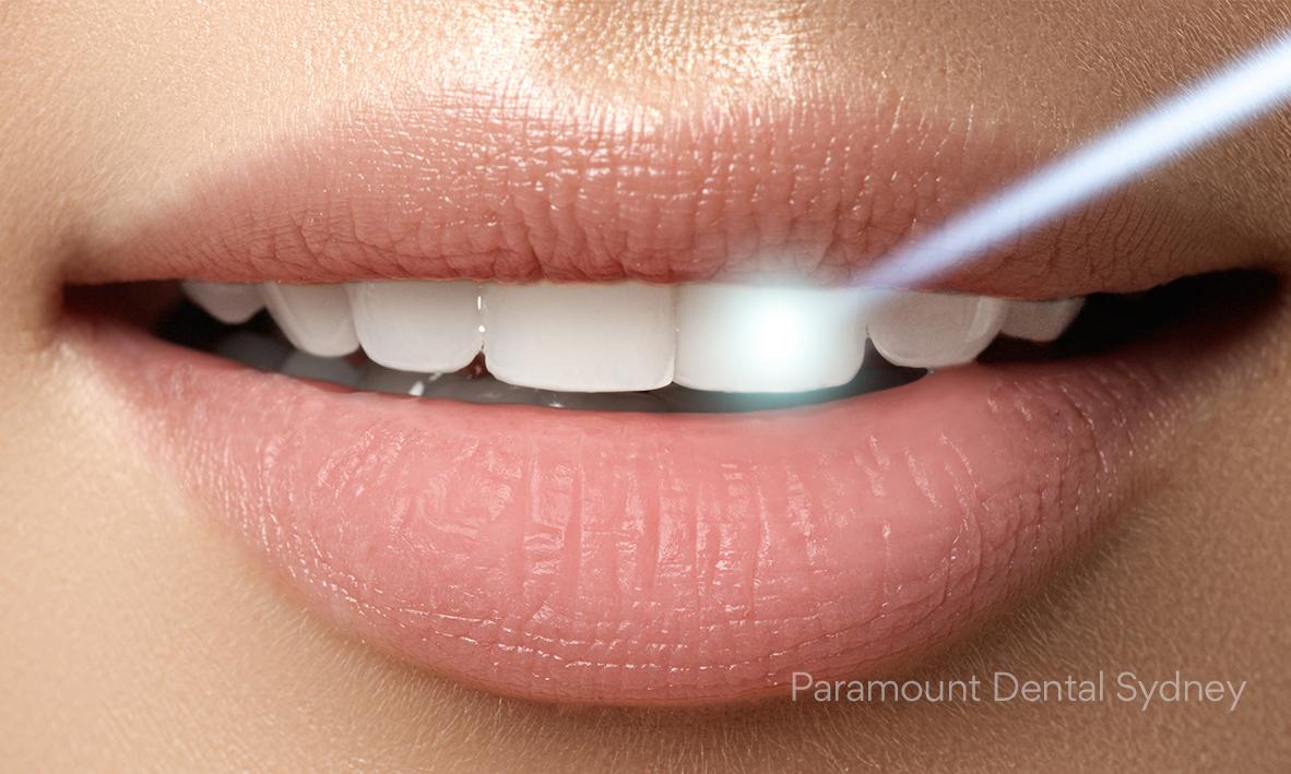 © Paramount Dental Sydney Cosmetic Treatments 03.jpg