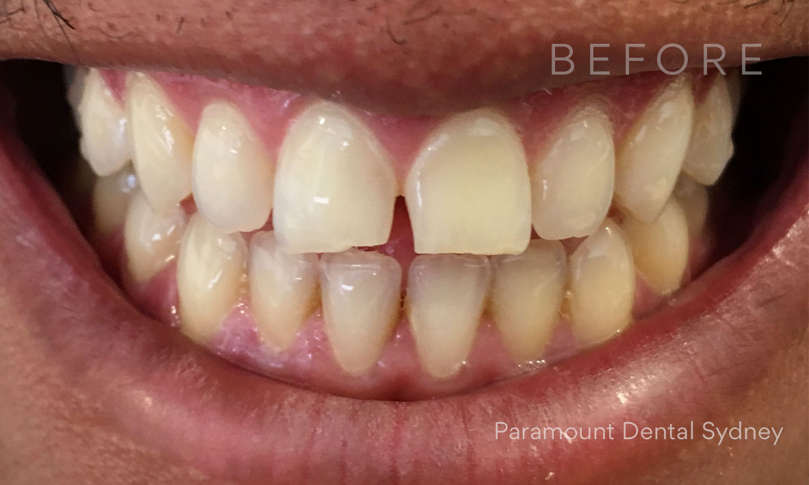 Before:  Gap between his two front teeth