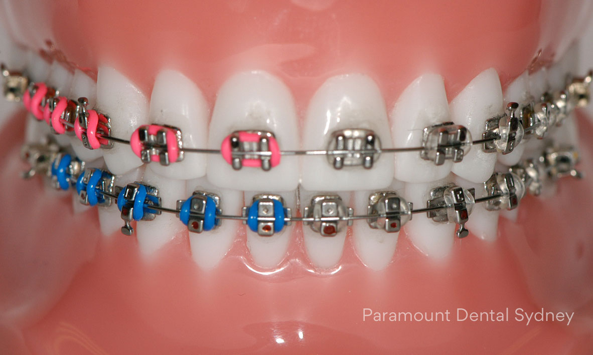 Braces - Metal & Coloured BracesCeramic BracesDamon Braces→