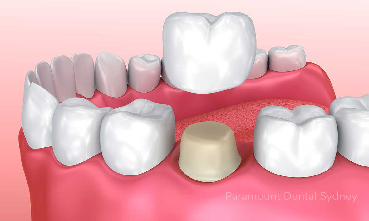 Dental Crowns - Crowns are tooth-shaped covers placed over existing teeth→