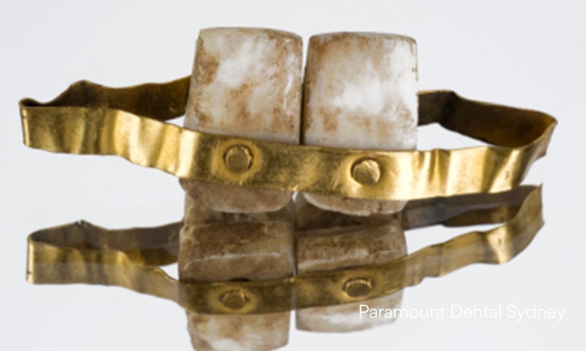 © Paramount Dental Sydney Gold Teeth 03.jpg