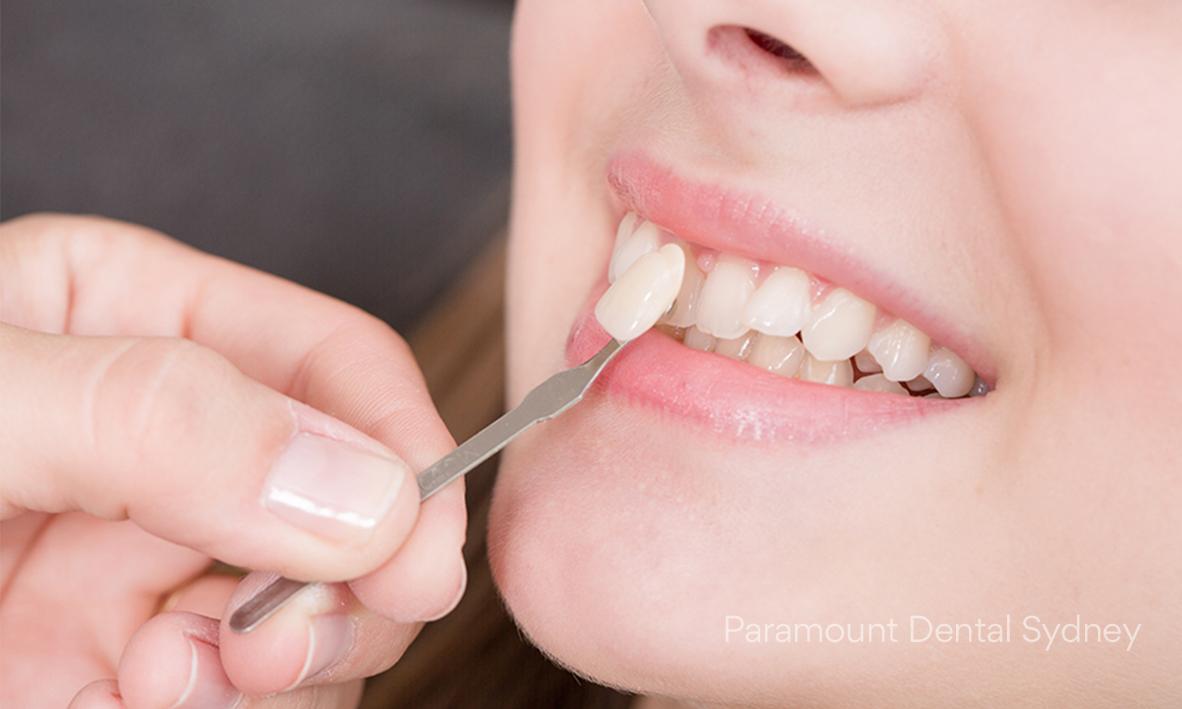 © Paramount Dental Sydney Gold Teeth 05.jpg