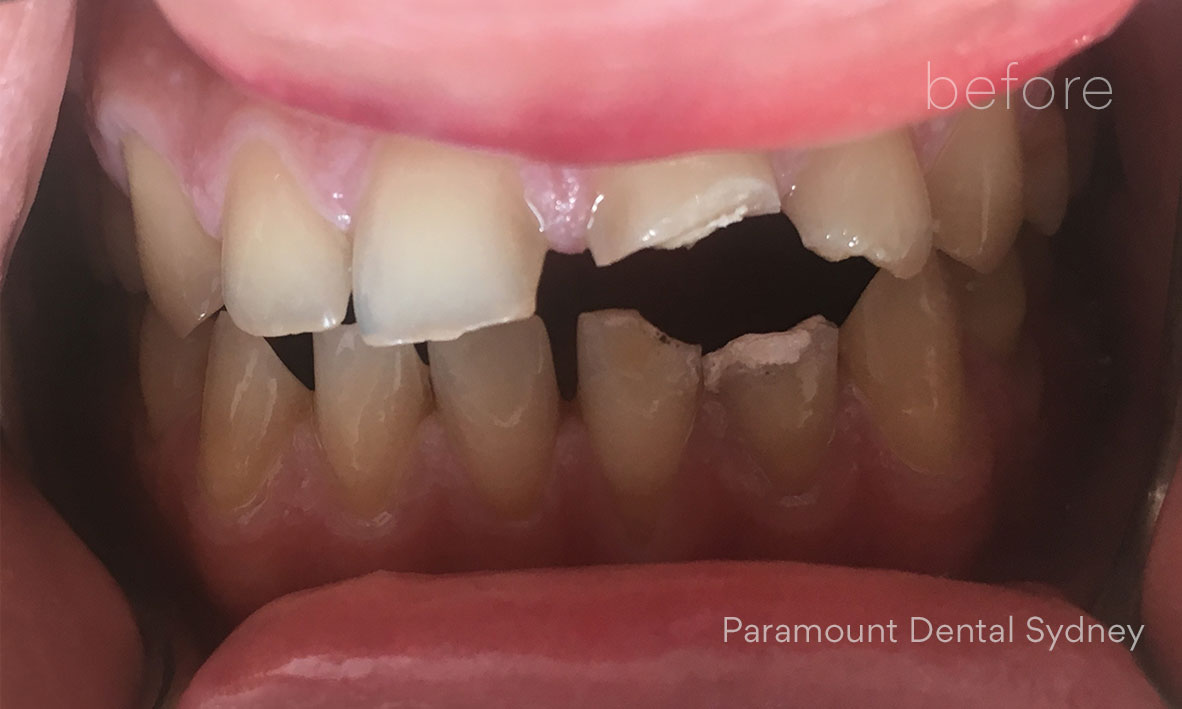 Treatment: Crowns, Composite Bonding and Teeth Whitening