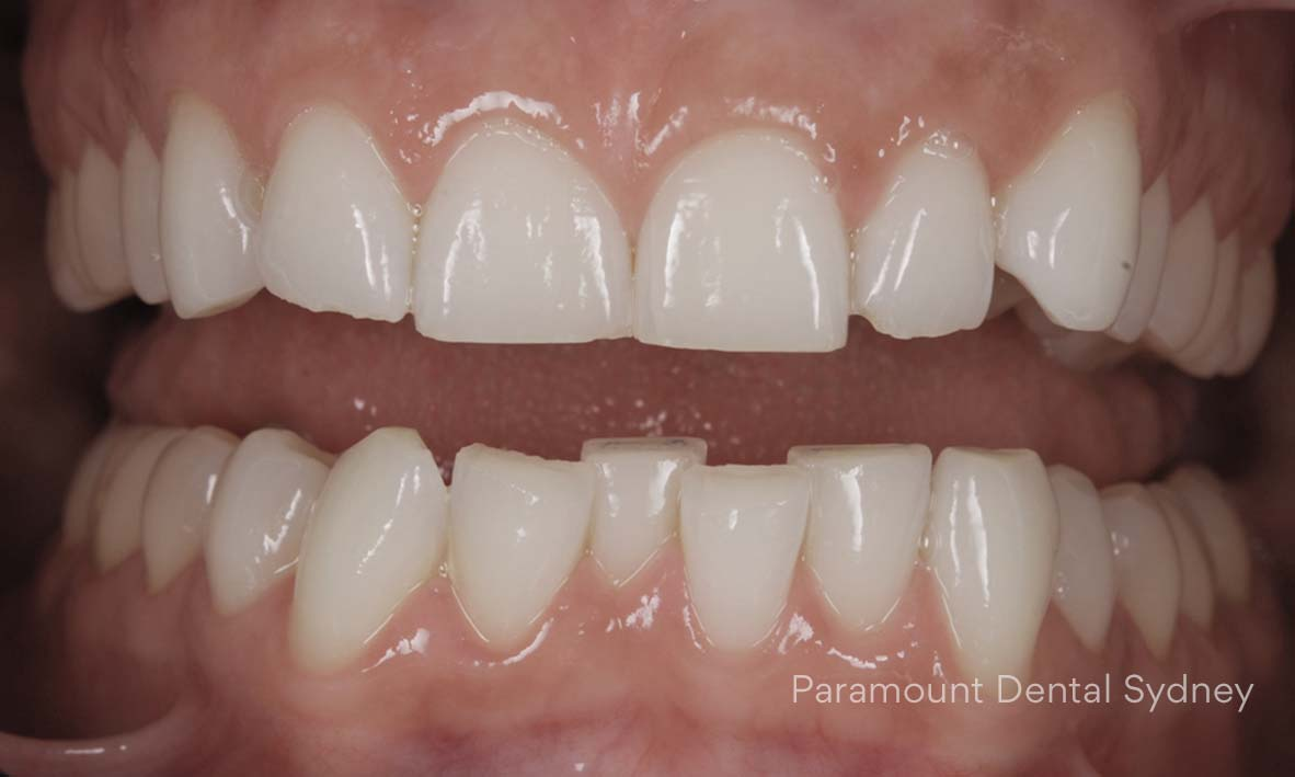 ©-Paramount-Dental-Sydney-Cosmetic-Problems-Crooked-Spaced-Crowded.jpg