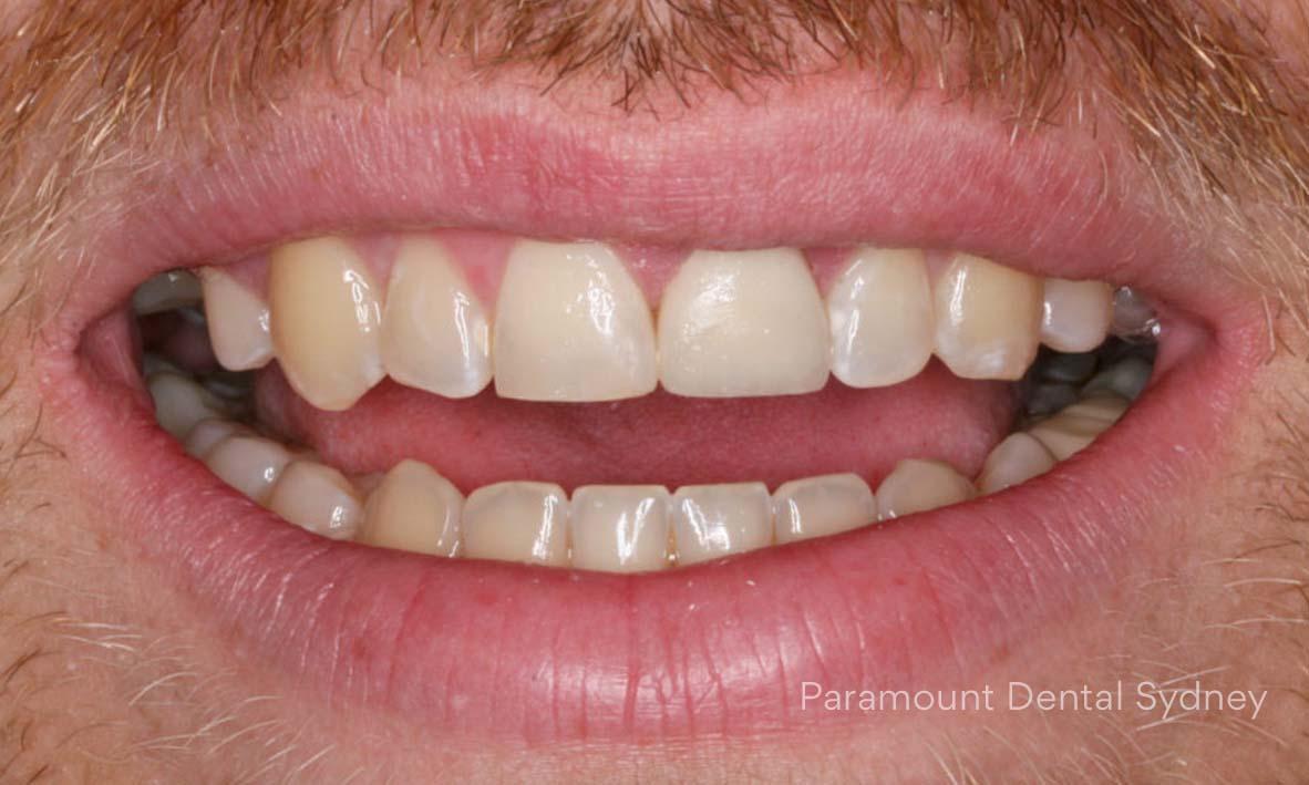 ©-Paramount-Dental-Sydney-Cosmetic-Problems-Discoloured.jpg
