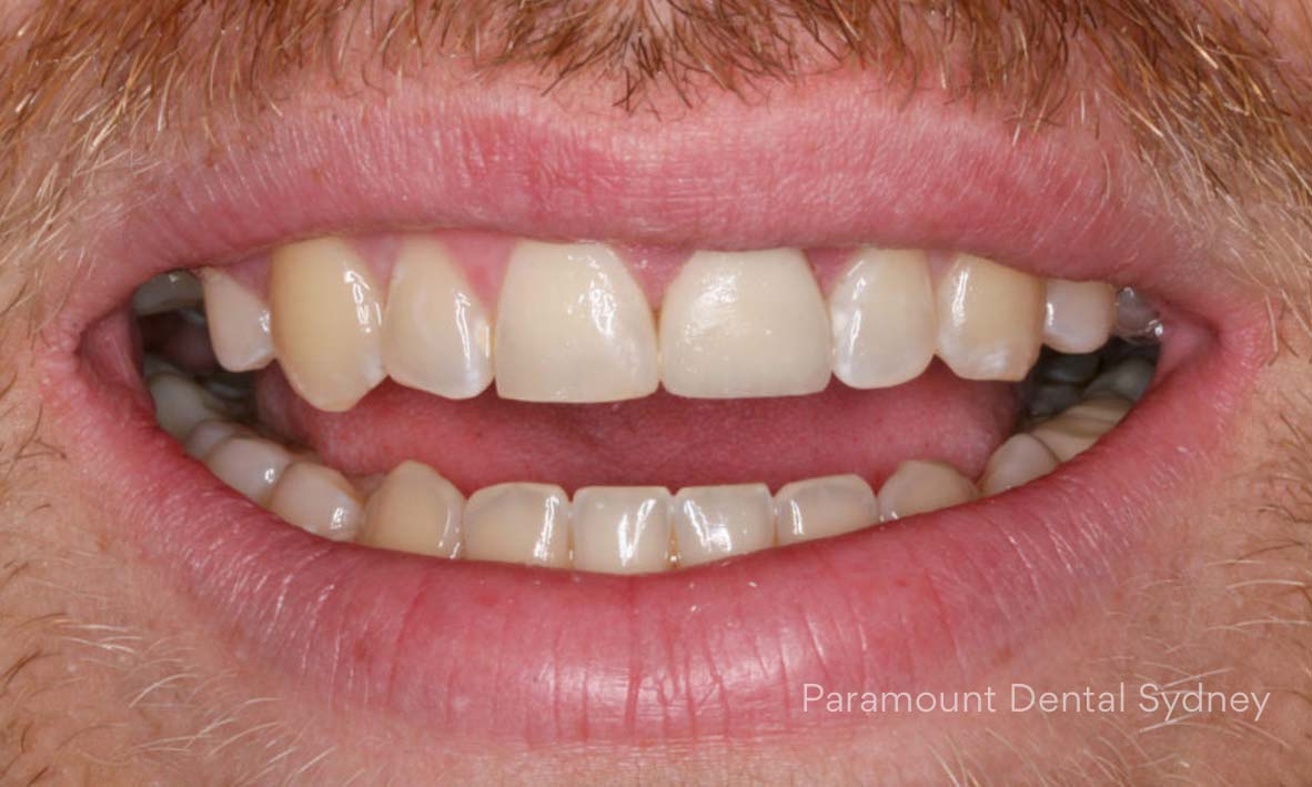 Discoloured Teeth - →