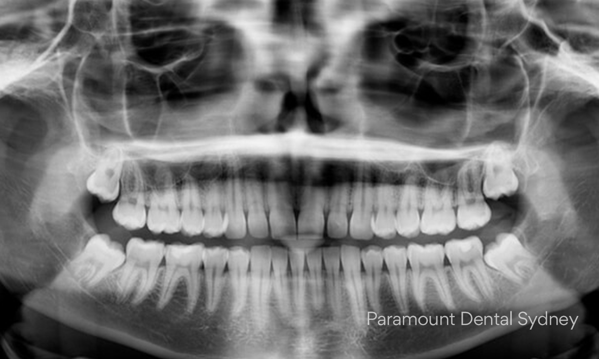 © Paramount Dental Sydney Wisdom Teeth 02.jpg