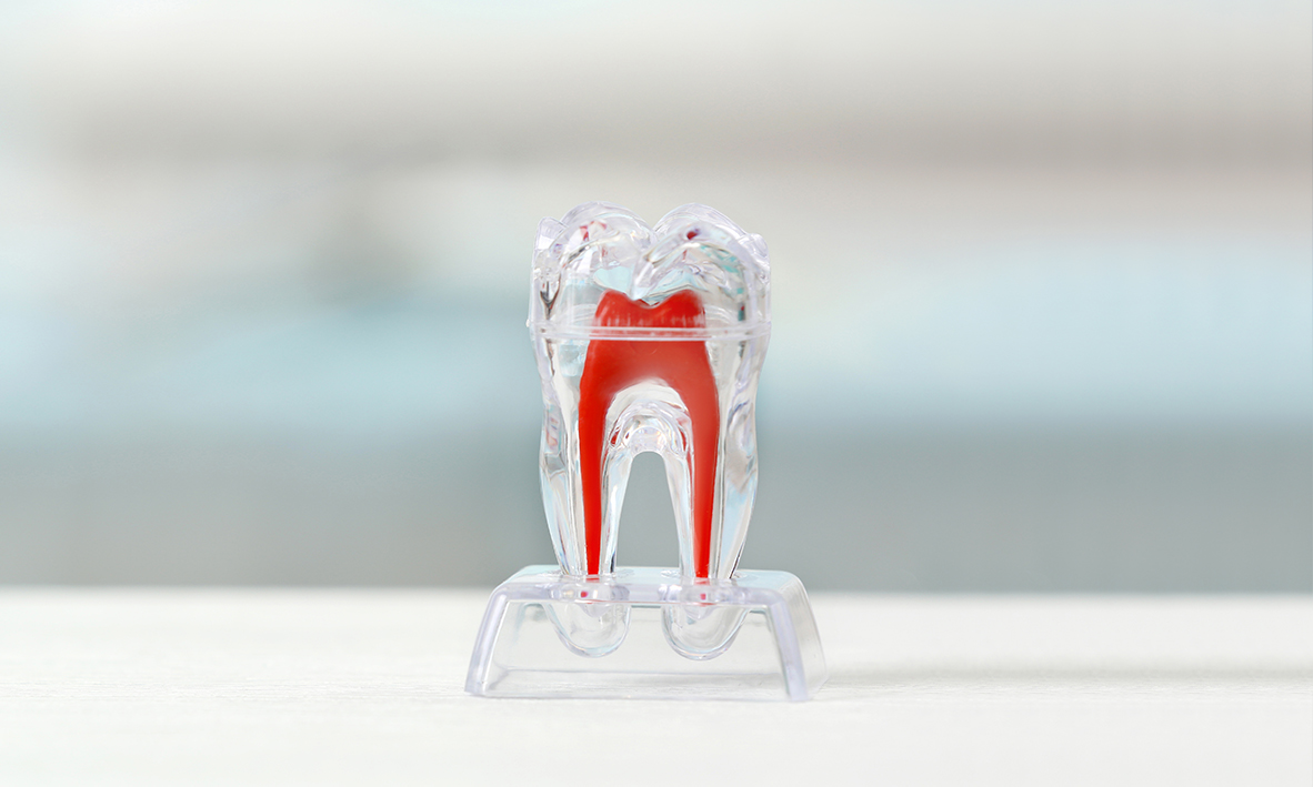 Pulp Extirpation - If the pulp is badly infected, an extirpation is carried out to save the tooth→