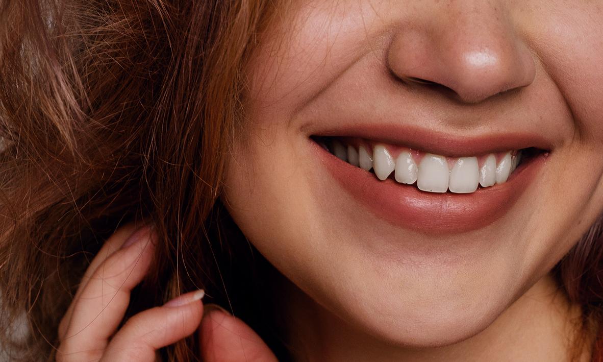 Cosmetic Problems - Missing TeethCrooked, Crowded TeethCracked, Chipped, Broken TeethDiscoloured TeethWorn TeethOld FillingsGummy Smile→