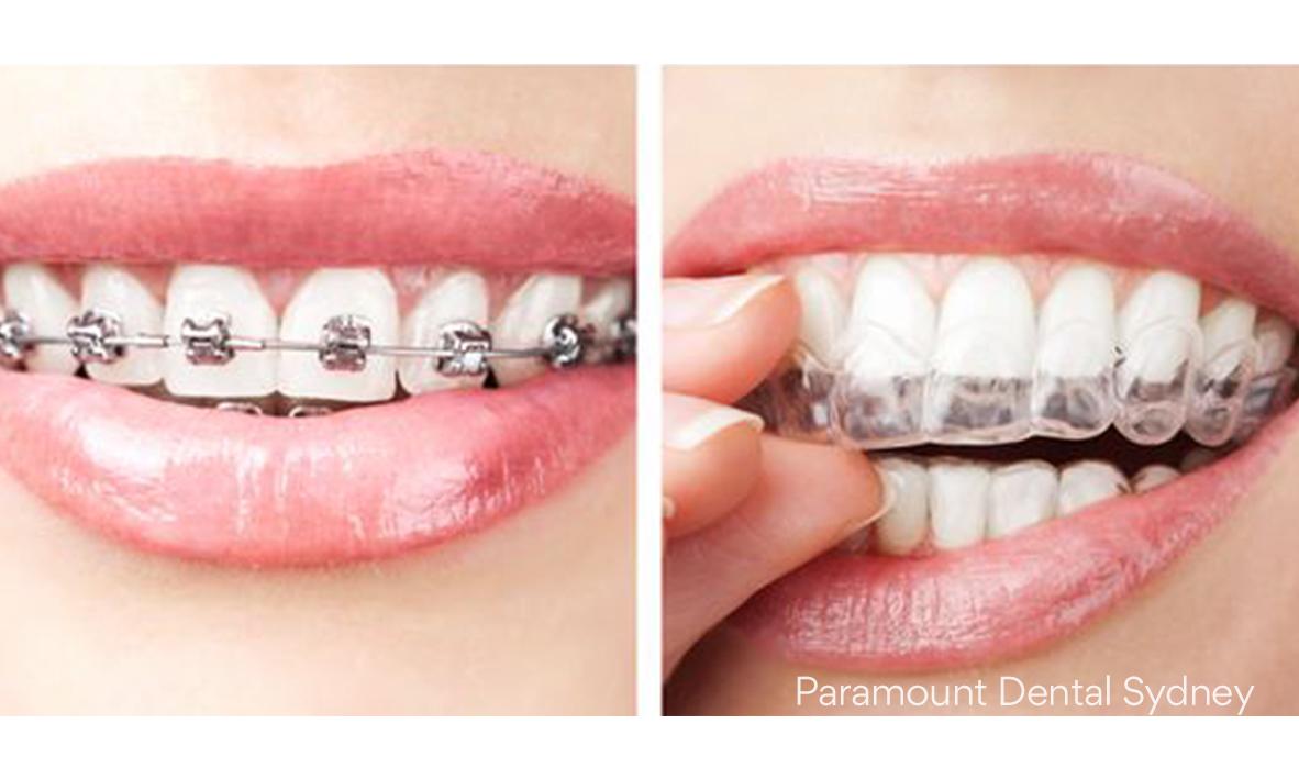 © Paramount Dental Sydney Invisalign vs Braces 03.jpg