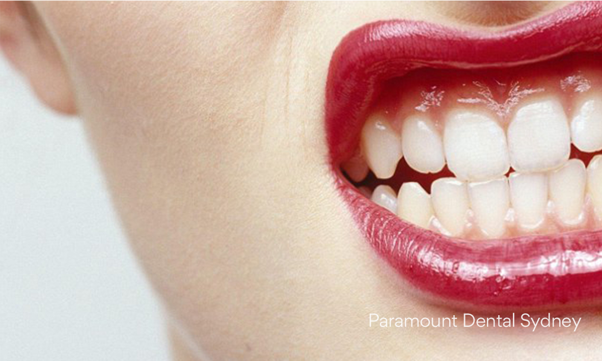 © Paramount Dental Sydney Snoring and Grinding 04.jpg