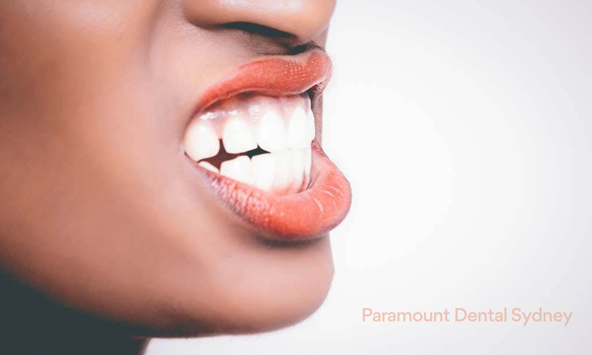 © Paramount Dental Sydney Jaw Pain 05.jpg