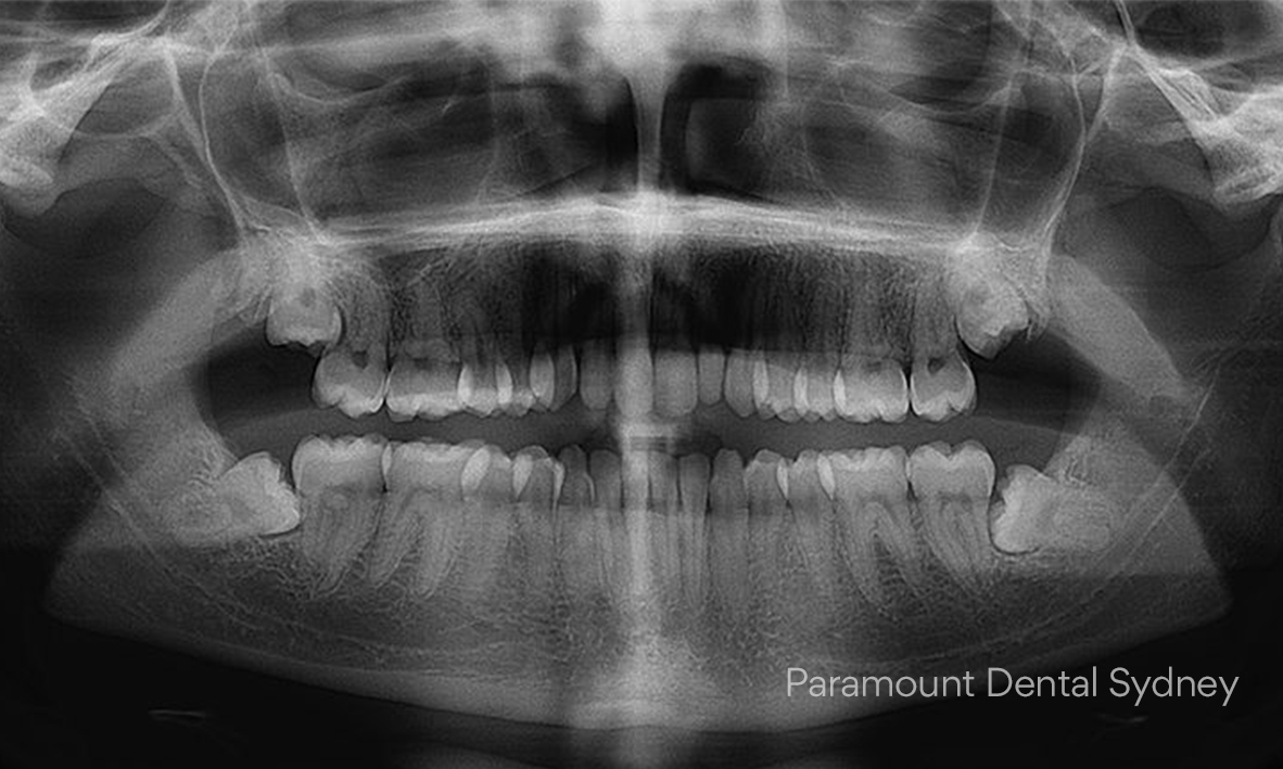 © Paramount Dental Sydney Jaw Pain 06.jpg