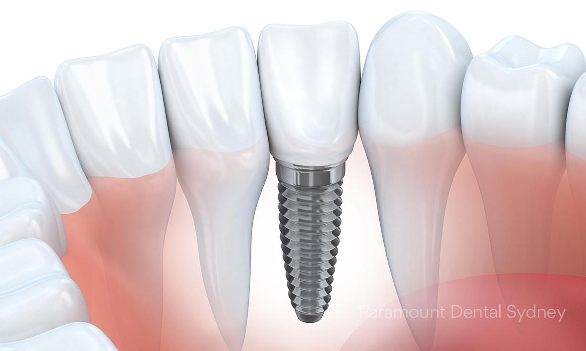 © Paramount Dental Sydney Dental Implants Benefits 04.jpg